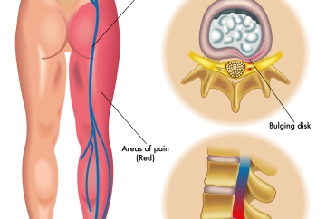 medical illustration of symptoms of the sciatica down the leg