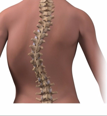 Illustration of an S shaped scoliosis curve of the spine